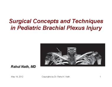 This presentation has been created by Dr. Rahul K Nath. Surgical Concepts and Techniques in Pediatric Brachial Plexus Injury presenation.